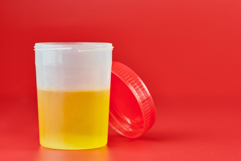 L'analyse du calcul urinaire permet de mieux traiter la colique néphrétique