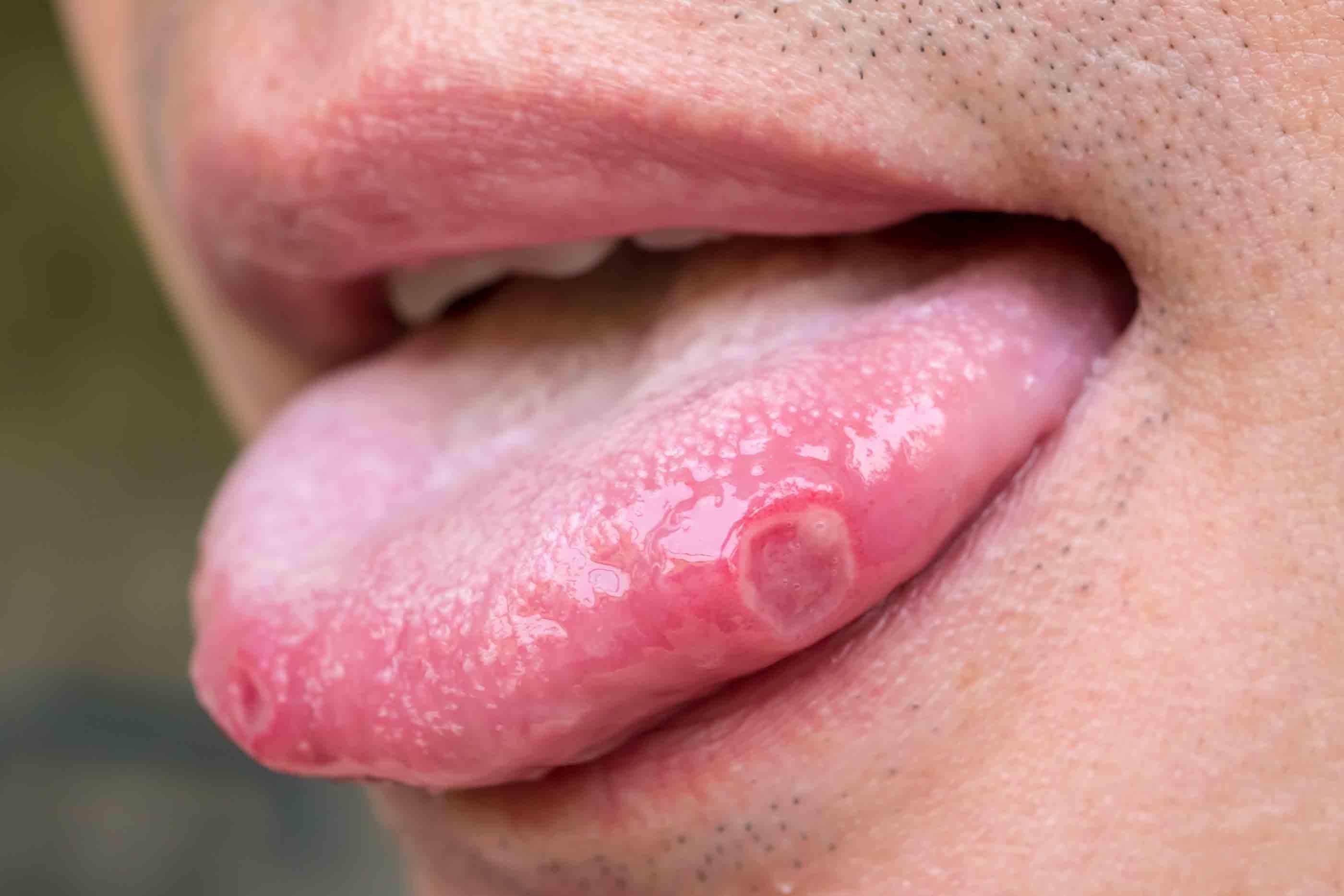 Lors de symptômes de la syphilis, le test sérologique confirme le diagnostic