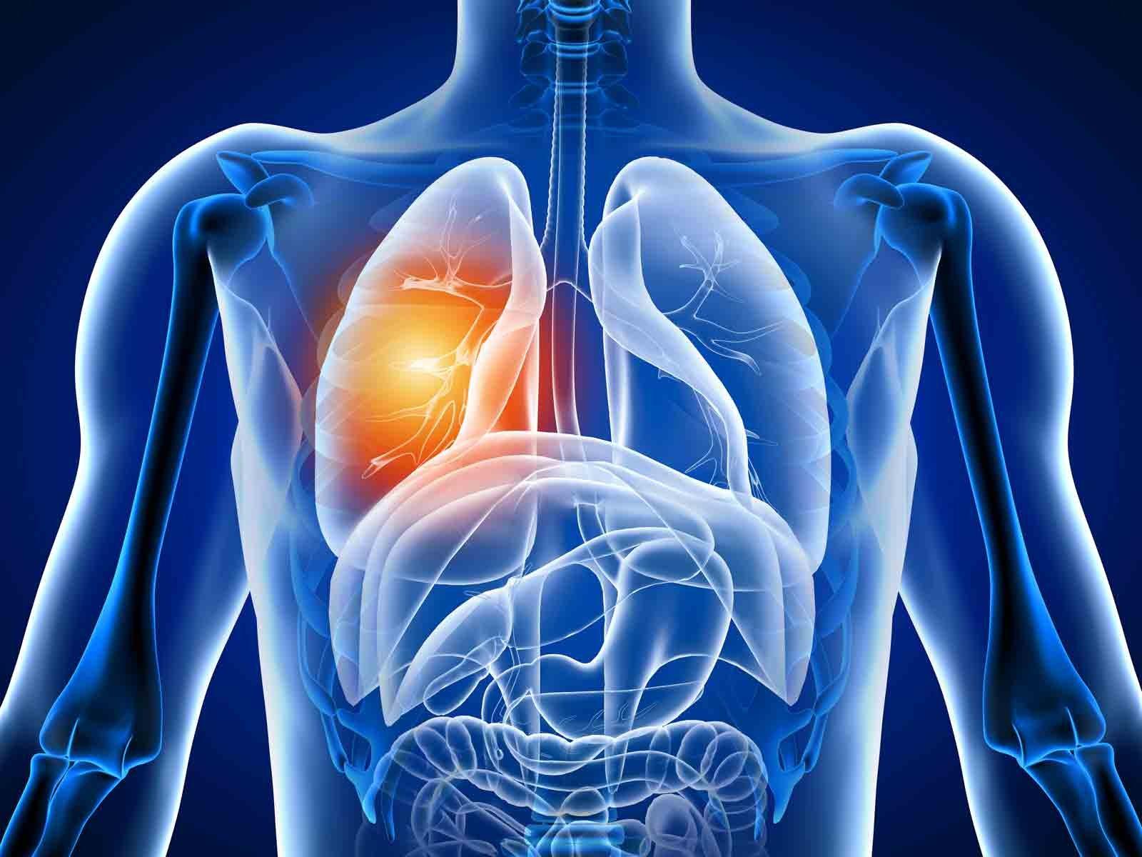 La bronchite peut être causée par une irritation des poumons